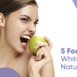 Foods to whiten teeth naturally - foods to avoid when whitening teeth - how to whiten teeth naturally fast - Tips by Prime Plus Medical Bali